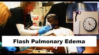 Flash Pulmonary Edema Emergency