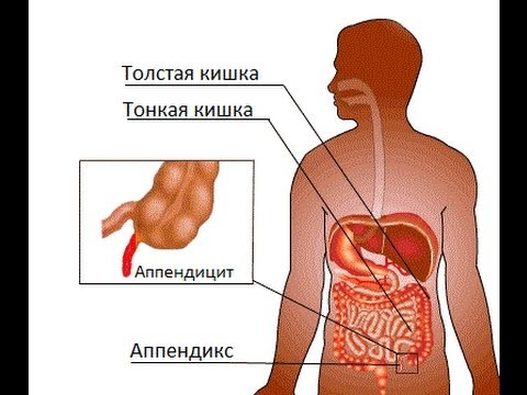 Продукты повышающие тромбоциты - чем следует питаться при