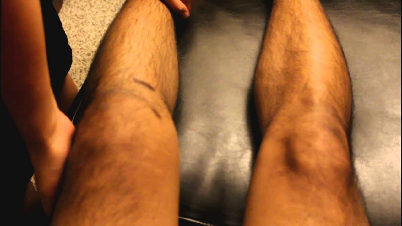 Grade 2 mcl sprain symptoms - Tore My Acl Mcl Again Surprise At The End