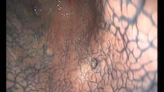 Грыжа пищеводного отверстия диафрагмы Рак пищевода Пищевод Барретта