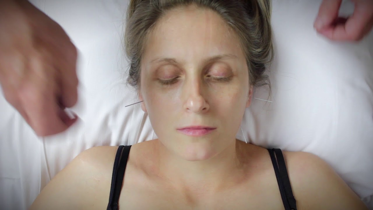 TMJ Acupuncture Treatment - YouTube