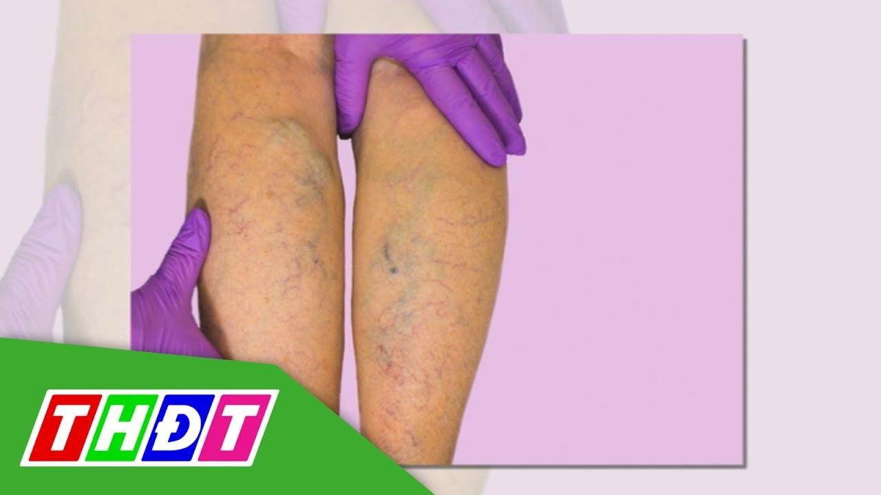 Suy giãn tĩnh mạch chân ở nữ giới | THDT
