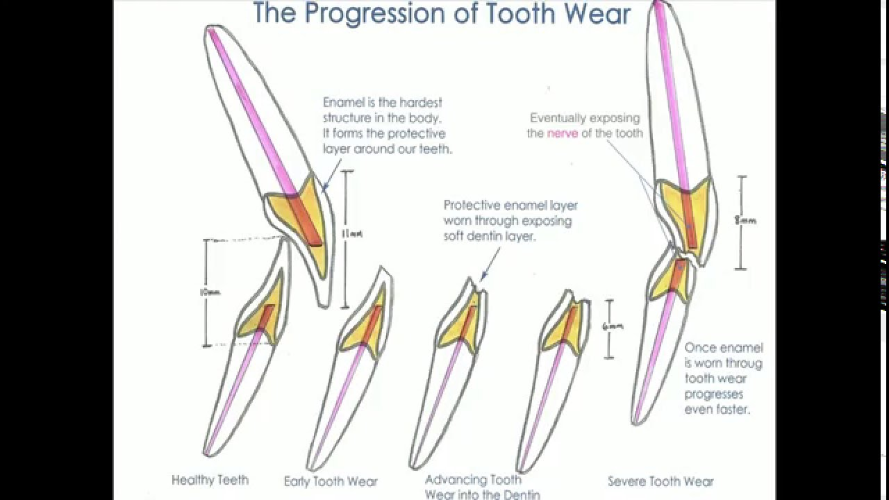 hight resolution of tooth wear and tooth erosion dr george olstein dentist melbourne