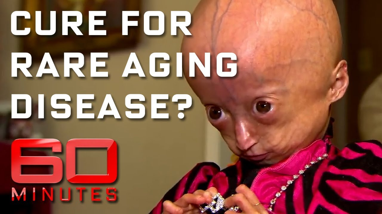 Rare disease ages children eight times faster | 60 Minutes ...