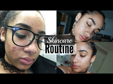 How I Cleared My Skin | Skincare Routine for Combination, Sensitive, Acne Prone Skin + Tips