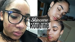 hqdefault - Skin Care Routine For Combination Acne Prone