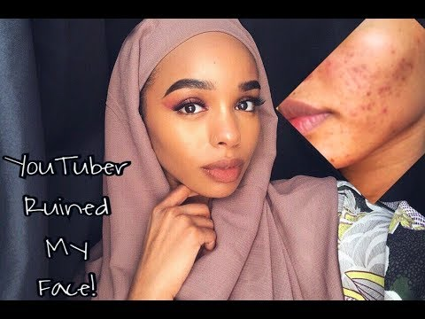 I RUINED MY SKIN REAL BAD USING BLACK SOAP& SHEA BUTTER|| BEFORE & AFTER PICTURES