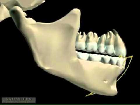 Mandibular Movement 3D