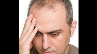 Top 5 Ways To Stop Balding Naturally Video Response