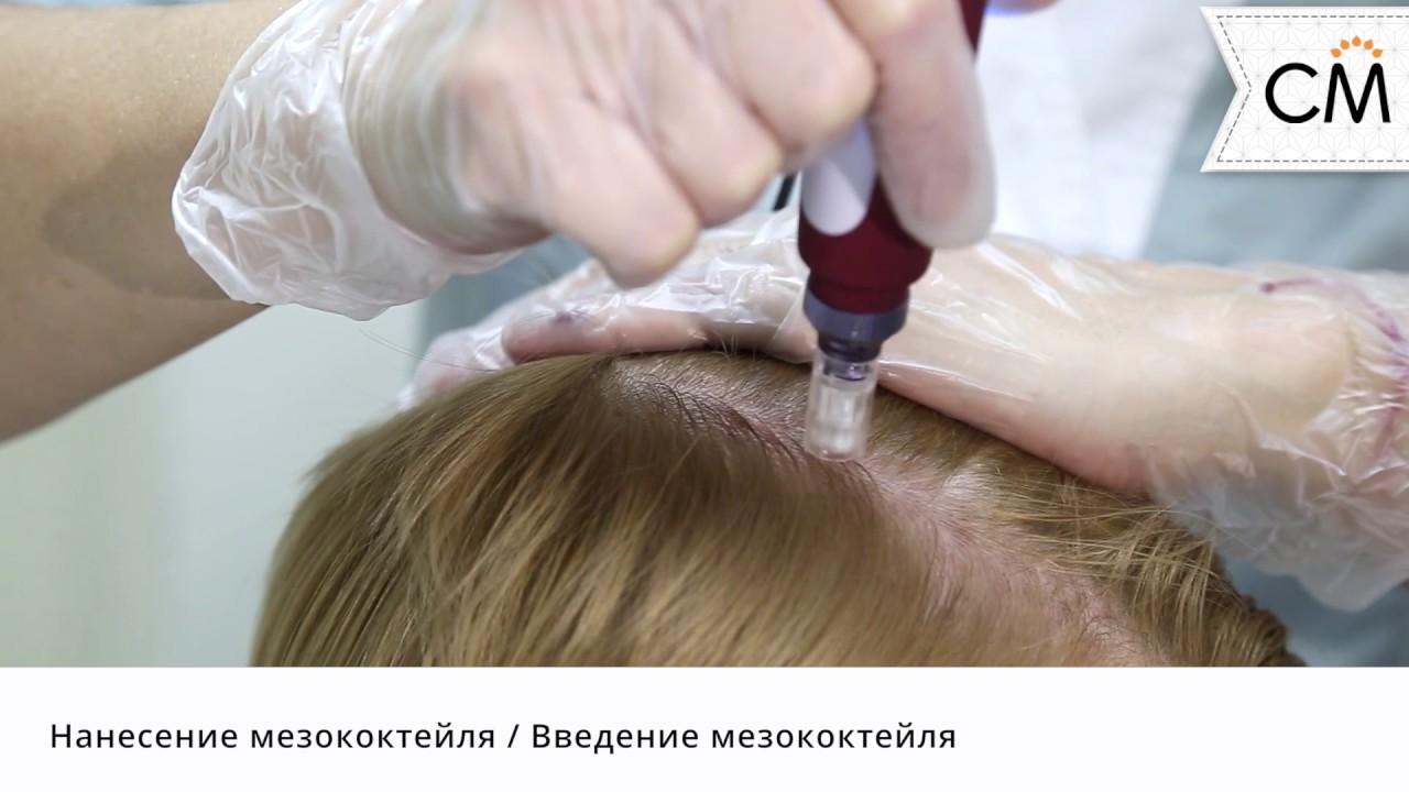 Мезотерапия для волос и кожи головы