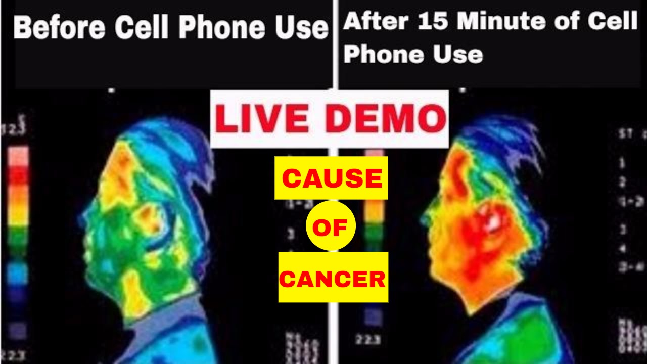 The dangers of cell phone use