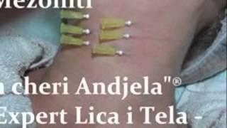 "3D Mezo-Niti za brze i dugotrajne rezultate  ""Mon cheri Andjela""®-Smederevo"