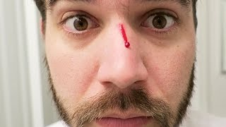 LOST THE FIGHT! (11.10.15 - Day 2386)