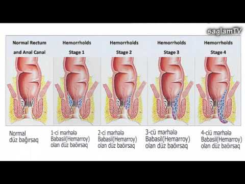 Наружный геморрой – лечение и симптомы внешнего геморроя