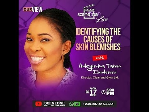 Download Our View on Sceneone TV (Identifying The Causes of Skin Blemishes)