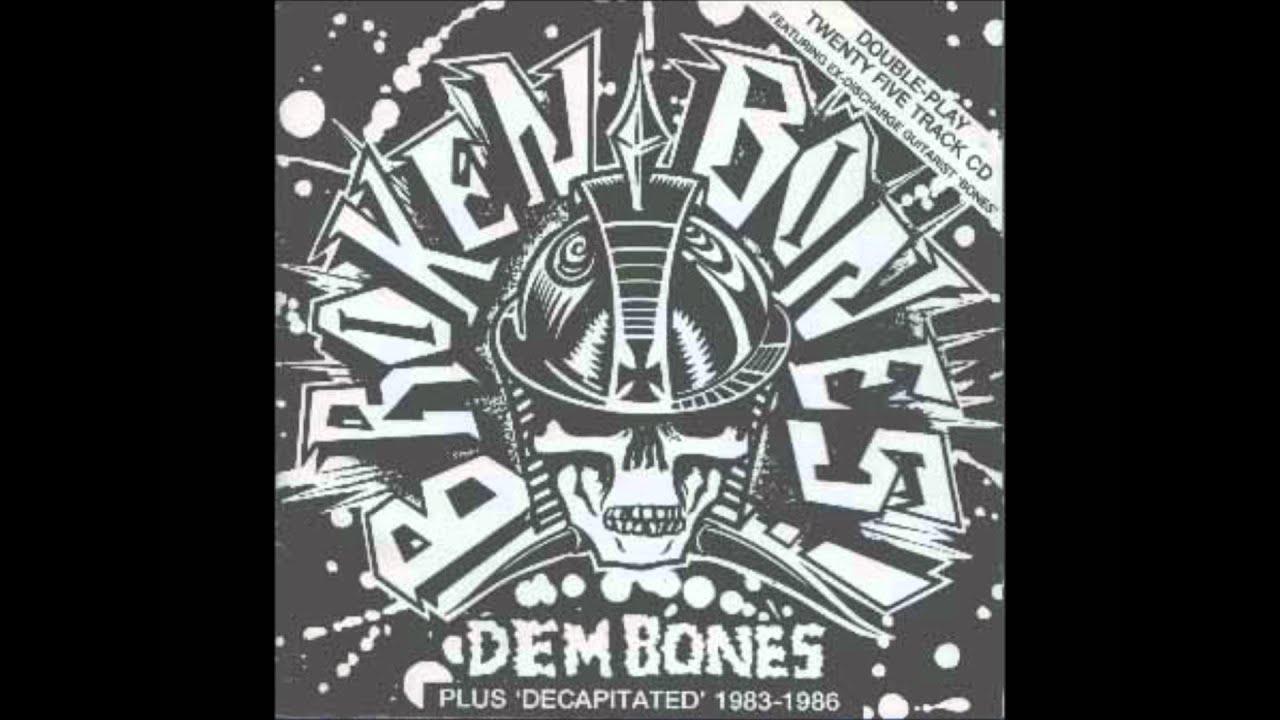 Broken Bones Civil War
