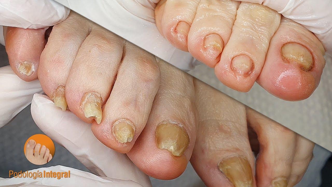Treatment for the feet of the elderly [Podología Integral]