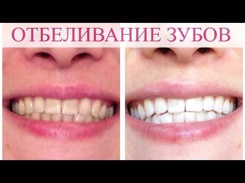 Отбеливания зубов. Моя история.
