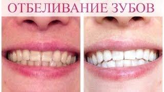 видео стоимость отбеливания зубов