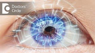 How to manage dry eyes post LASIK Laser? - Dr. Sunita Rana Agarwal