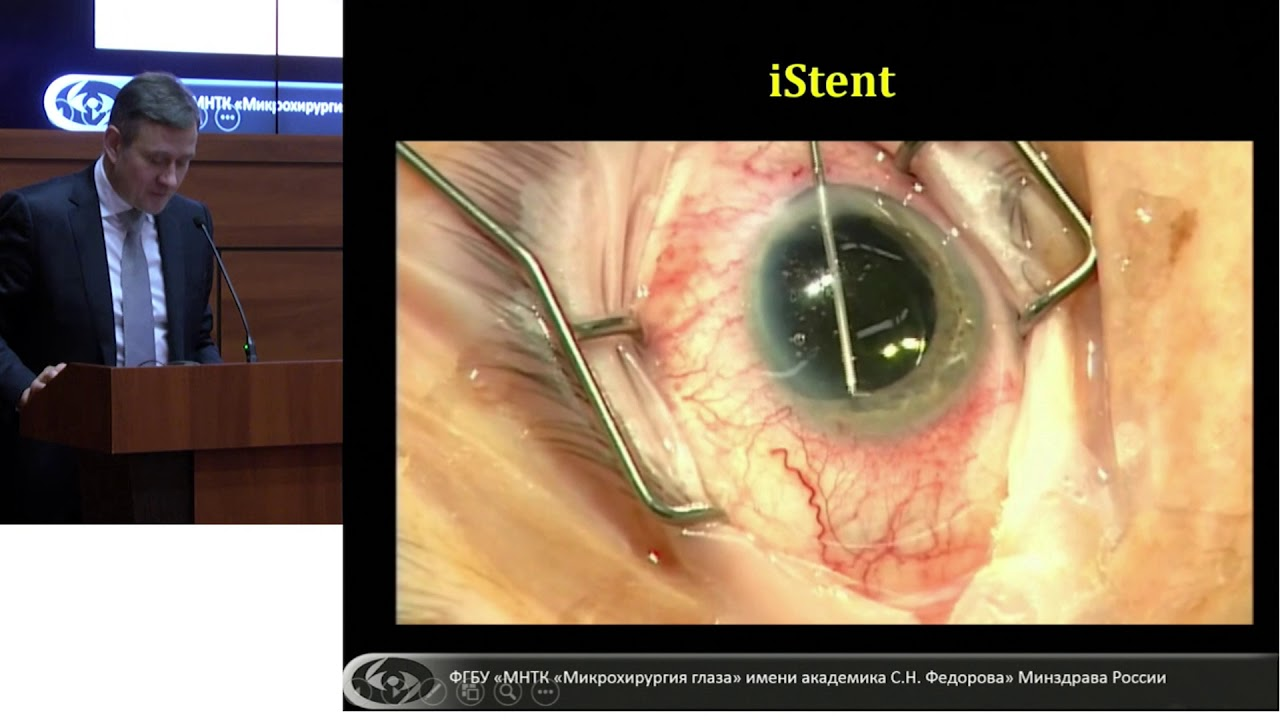 Сurrent trends of glaucoma microsurgery in patients with cataract