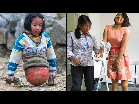 La prendevano in giro perchè perse entrambe le gambe.Adesso è Milionaria e guarda com'è cambiata!