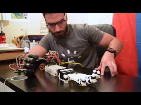 High School Student Creates a Robotic Hand - YouTube