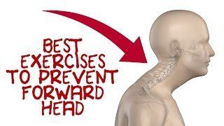 Forward Head Exercises to Fix Forward Head Posture(Here are five forward head exercises to fix ugly forward head posture and prevent long term spinal damage. Click Below for the Forward Head Posture Self-Test: ..., 2016-12-16T21:07:29.000Z)
