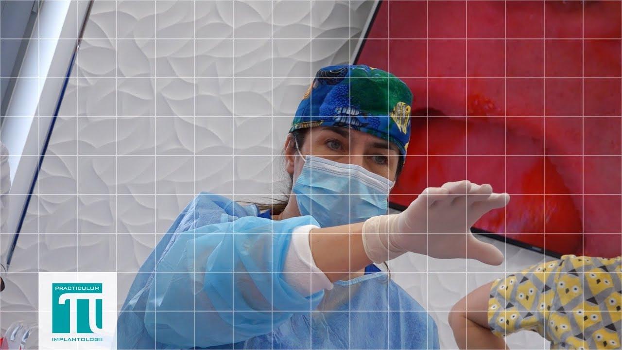 Sesja 8  Practiculum Implantologii Sezon VII A zabieg 2