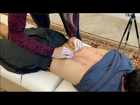 SKIN CRACKING For BACK CRACKS ~ BELIEVED IT WAS GOING TO HURT!