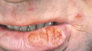 Basal skin cancer pictures