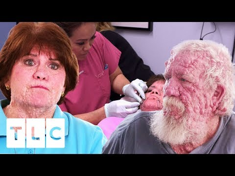 Siblings With Rare Skin Condition Seek Dr. Lee's Help | Dr. Pimple Popper: This Is Zit