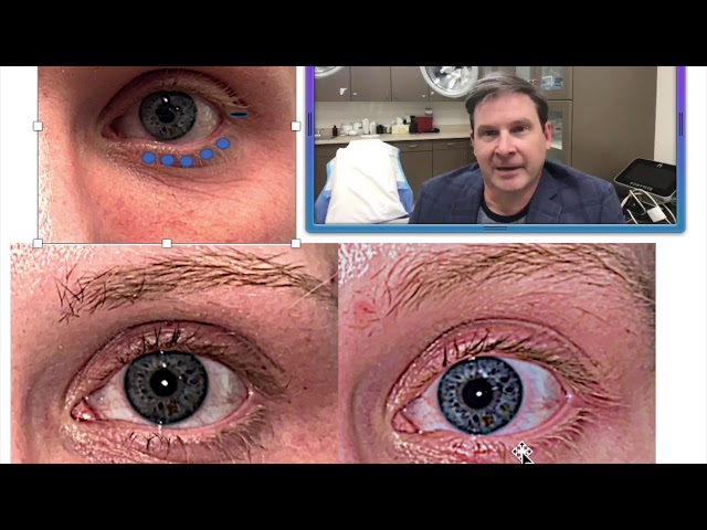 Dr. John Burroughs Discusses Cosmetic Skin Pinch Blepharoplasty Canthopexy Surgery
