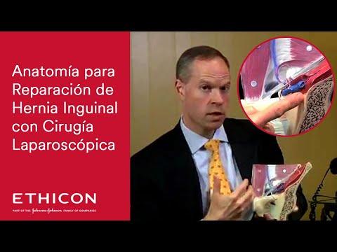 Revisión de anatomía para reparación de Hernia Inguinal con Cirugía ...