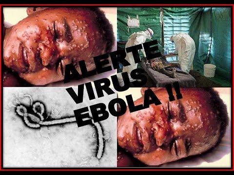 Ebola là gì và triệu chứng ban đầu của người bệnh Ebola