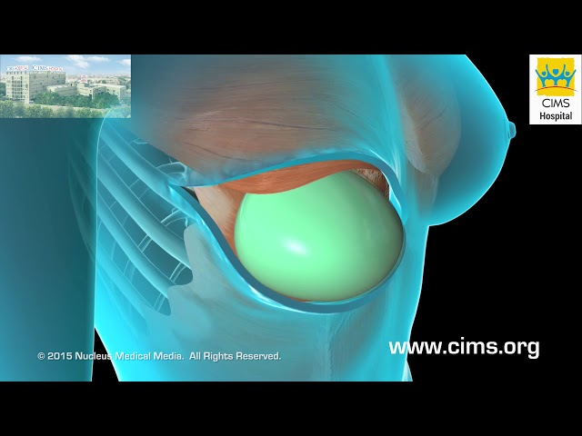 Breast Reconstruction (Gujarati) - CIMS Hospital