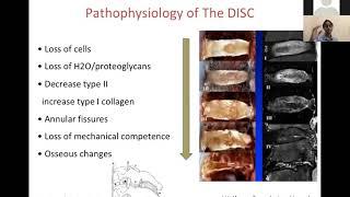 Dr. George Muntean - Artroscopie - osteofit talar posterior.