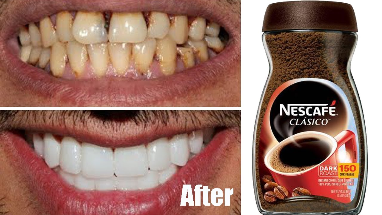 Teeth whitening at home in 2 minutes / how to naturally whiten your yellow teeth