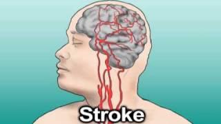 Hypertension and Stroke (Health Tip)
