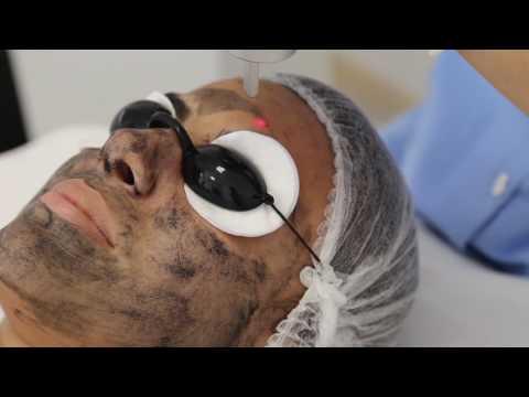 LaserLand klinikası - Karbon Pilinqi