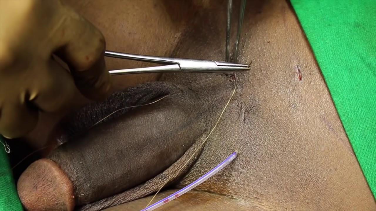 Big dick surgery — photo 8
