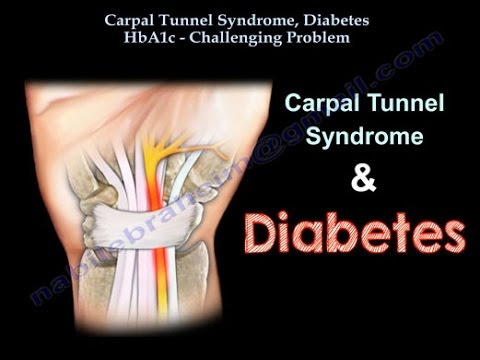 Carpal Tunnel Syndrome, Diabetes HbA1c - Everything You Need To Know - Dr. Nabil Ebraheim