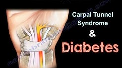hqdefault - Is Carpal Tunnel A Form Of Peripheral Neuropathy