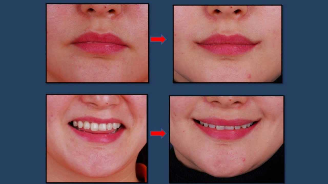 Cosmetic Surgery Mouth 5