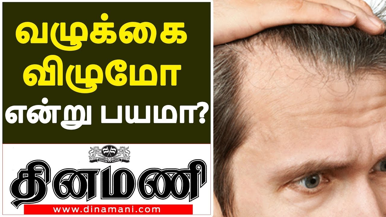 Treatment   Hair Loss Treatment