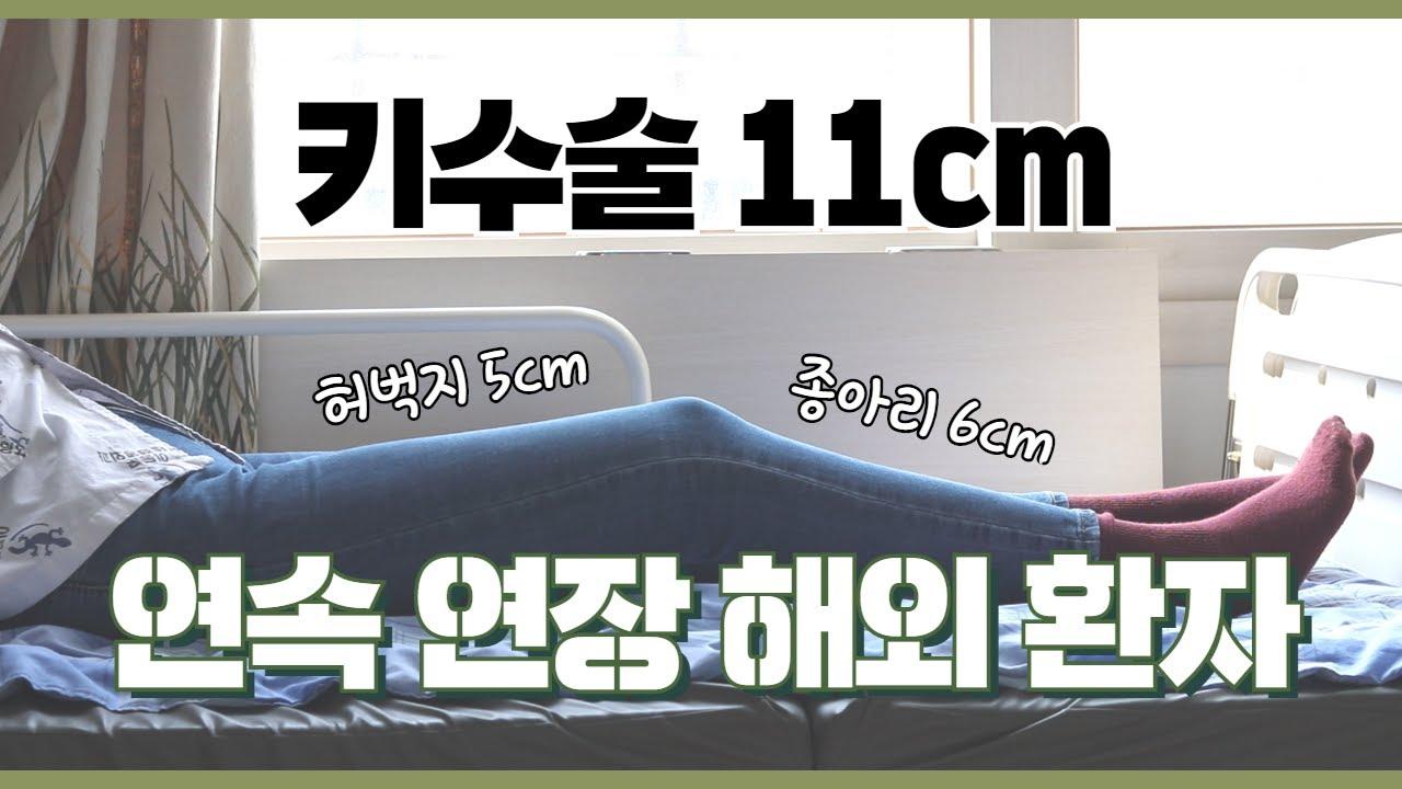 키크는수술 11cm 연속연장 해외환자 인터뷰