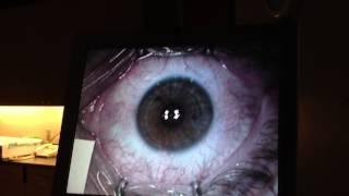 PRK Laser Eye Surgery