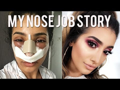 My Nose Job Surgery Story And Vlog Cost And Experience Youtube