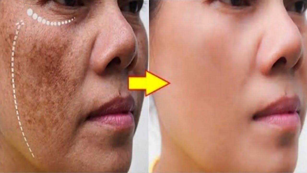 إزالة تصبغ الوجه بشكل طبيعي في المنزل علاجات نصائح  لايف ستايل