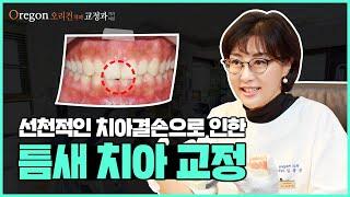 치아결손으로 인한 틈새치아 교정 후기 【feat. 오리…